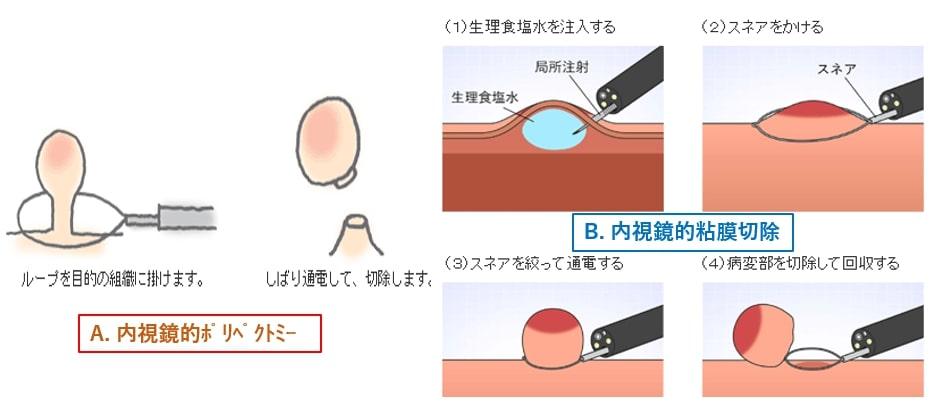 ポリペクトミー・内視鏡的粘膜切除(EMR)
