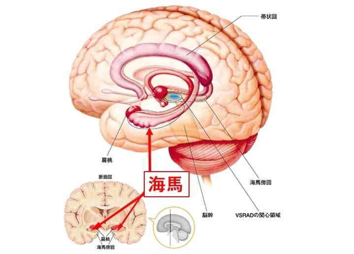 脳血管性認知症(VD)