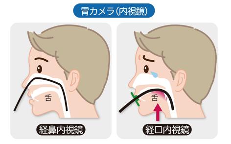 鼻からの胃カメラ検査(経鼻内視鏡)