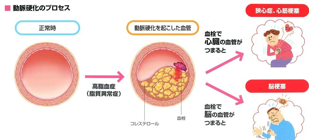 高コレステロール血症(脂質異常症)