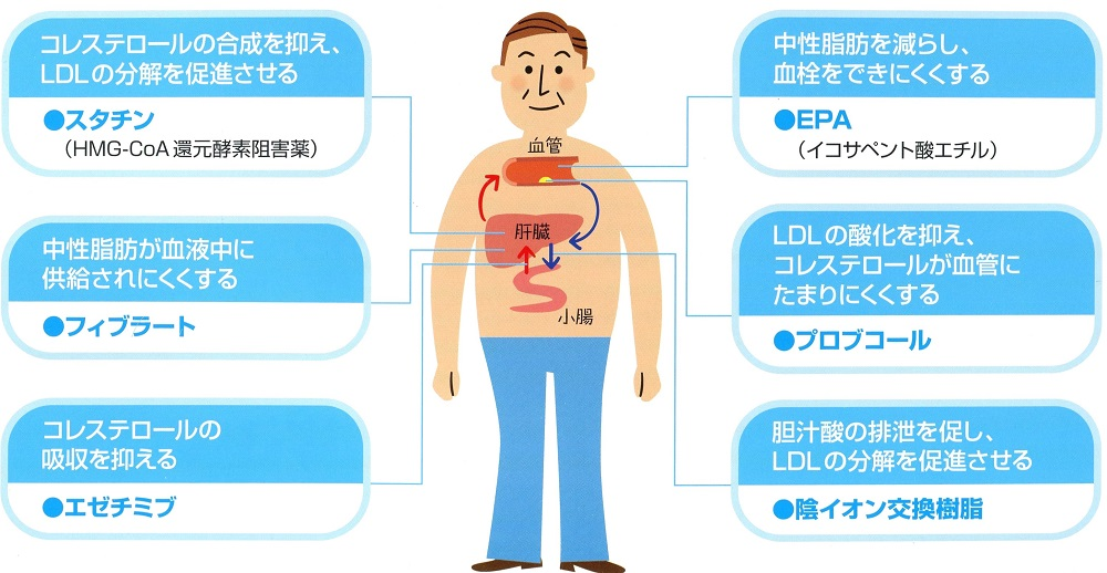 高コレステロール血症(脂質異常症)治療