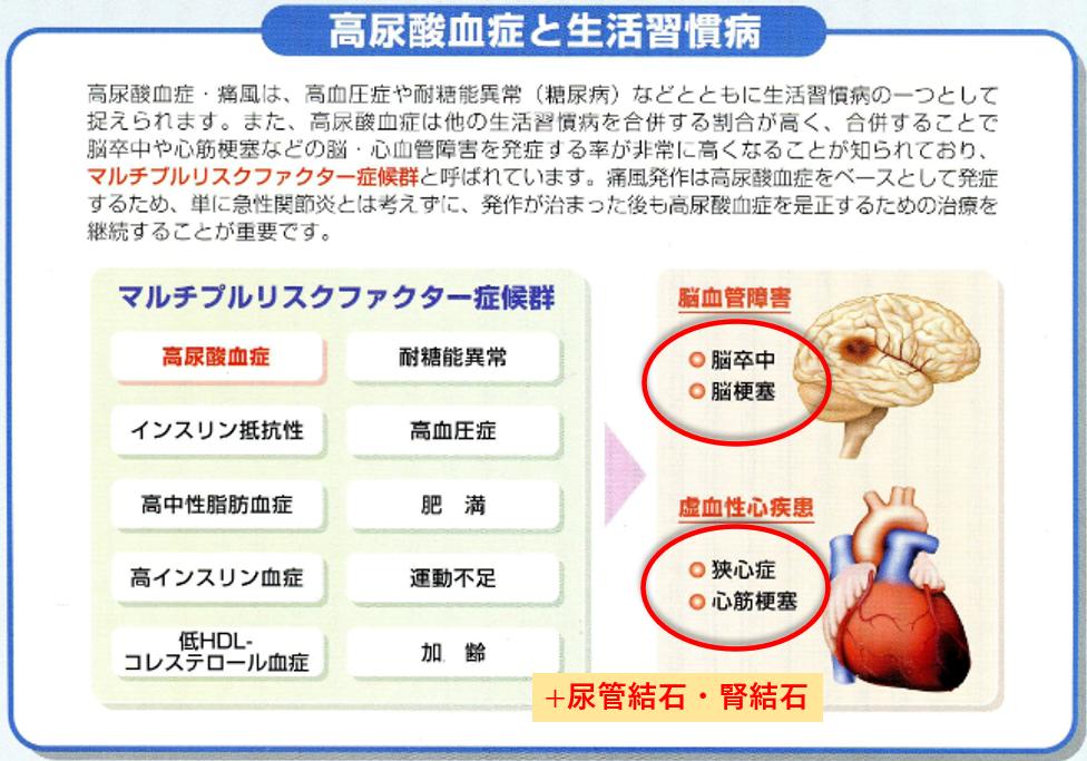 高尿酸血症を放置すると、脳卒中や心筋梗塞、尿管結石の危険が高まります!