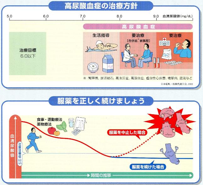 高尿酸血症の治療