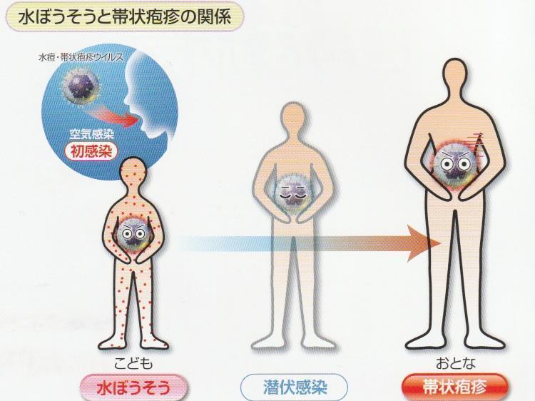 帯状疱疹(たいじょうほうしん)とは